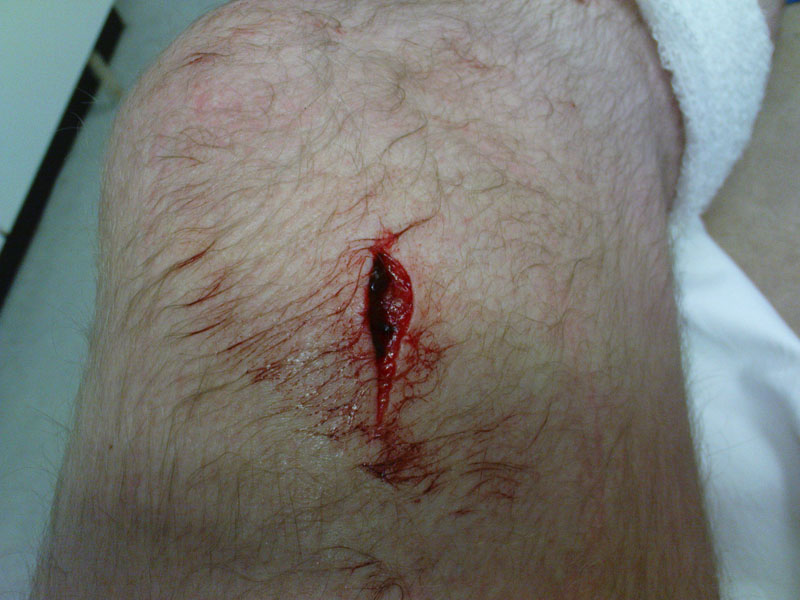 Pictures of Bad Wounds http://paleoplanet69529.yuku.com/topic/20129